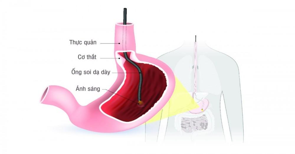 Đau dạ dày: triệu chứng, nguyên nhân và cách điều trị hiệu quả