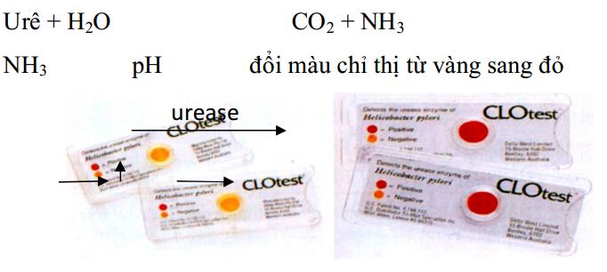 4 phương pháp xét nghiệm vi khuẩn HP dạ dày (Helicobacter Pylori dạ dày)