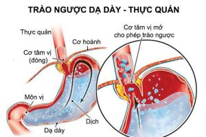 Cảnh báo: Bệnh trào ngược dễ gây ung thư thực quản