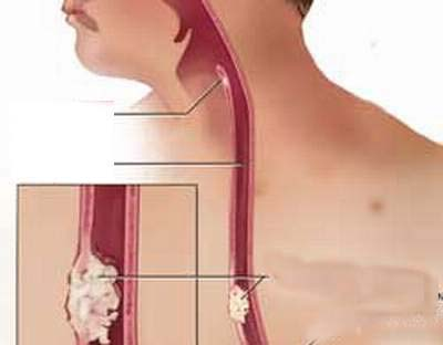 Bị chít hẹp thực quản do trào ngược dạ dày có nguy hiểm không?