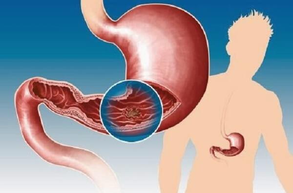 Loét dạ dày ung thư hóa như thế nào?