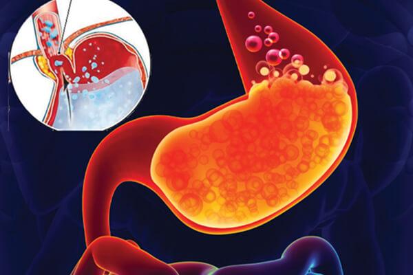 Vậy, mắc bệnh viêm loét dạ dày có nguy hiểm không?