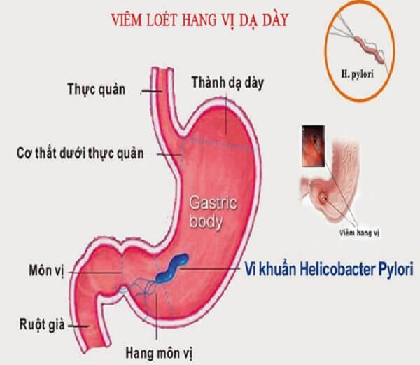 Viêm hang vị dạ dày - Các bệnh về dạ dày nguy hiểm thường gặp, bệnh lý về đường ruột