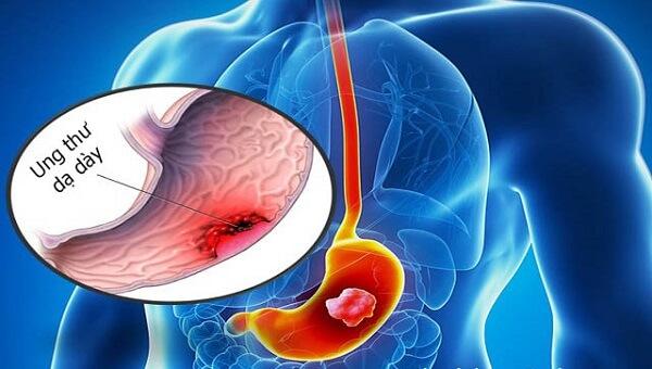 Ung thư dạ dày là biến chứng sau cùng của các căn bệnh được kể trên