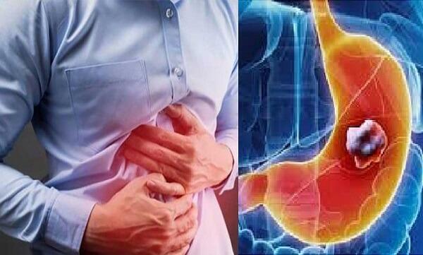 Bệnh đau dạ dày có mặt hầu hết ở các lứa tuổi hiện nay