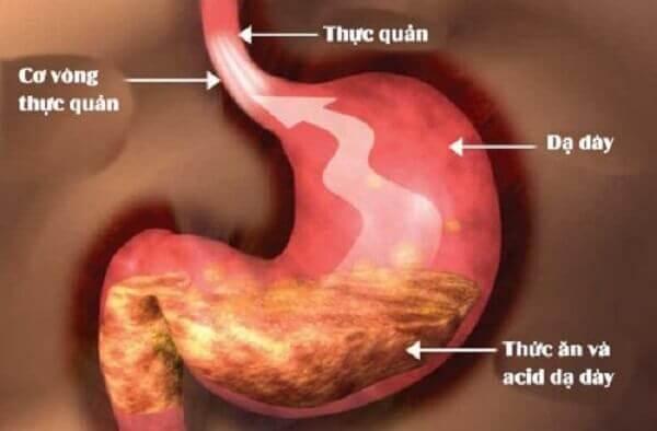 Cách chữa trào ngược dạ dày thực quản tại nhà bằng thuốc Nam