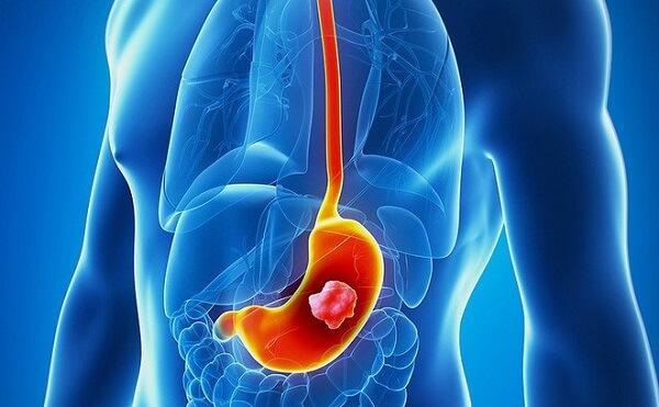 Bị trào ngược dạ dày chính là bệnh viêm loét dạ dày