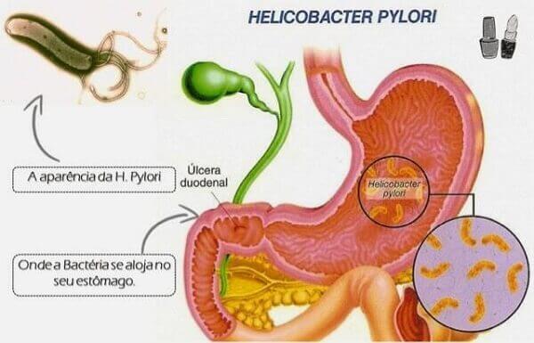 Các con đường lây nhiễm vi rút HP - Cách điều trị viêm loét dạ dày tá tràng Hp dương tính bệnh học