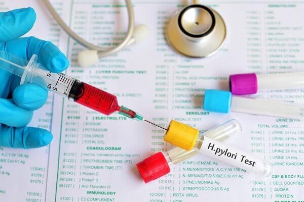 phòng ngừa sự lây nhiễm vi rút HP - Cách điều trị viêm loét dạ dày tá tràng Hp dương tính bệnh học