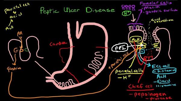 Đau dạ dày ở vị trí nào, thường đau ở bên trái hay bên phải?