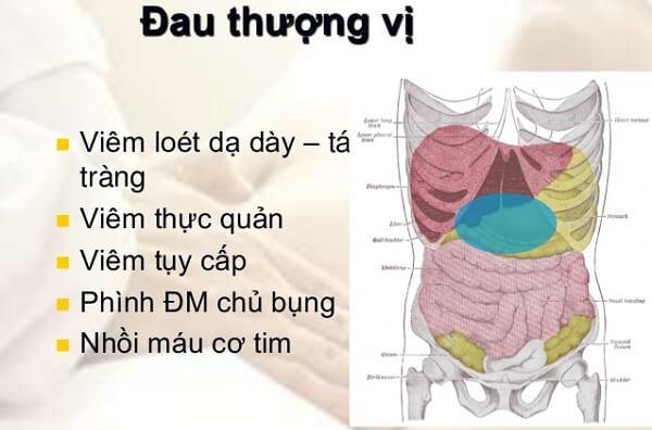 Bệnh đau thượng vị dạ dày là gì? Vùng thượng vị nằm ở đâu, triệu chứng đau thượng vị dạ dày