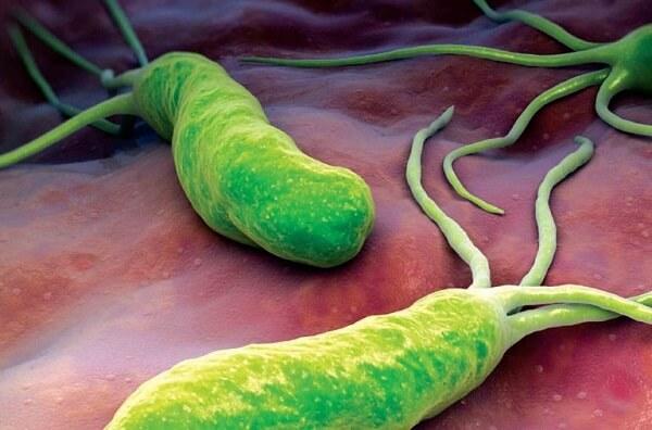 Vi khuẩn HP cũng có thể gây chứng ợ hơi - Hay ợ hơi là triệu chứng của bệnh gì, cách chữa ợ hơi nhanh, liên tục