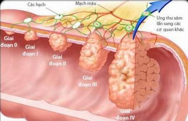 Những dấu hiệu, triệu chứng ung thư dạ dày giai đoạn đầu bạn nên biết sớm