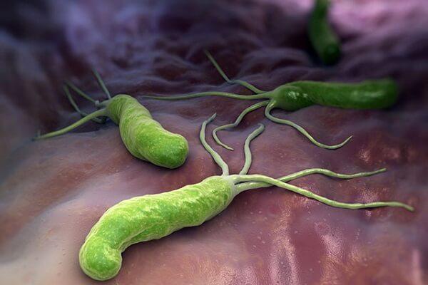 Không nên tự ý dùng các bộ kít điều trị vi khuẩn Hp