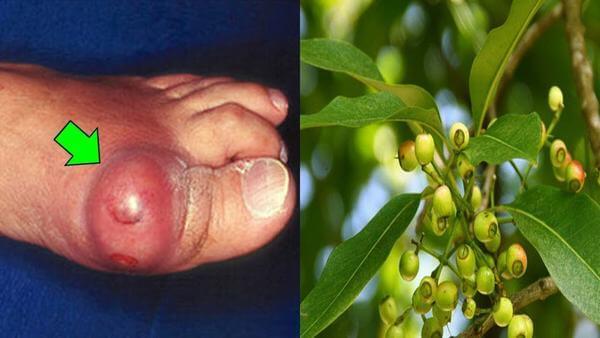 Ttác dụng của lá vối tươi, tác dụng của lá vối với bà bầu, phụ nữ sau sinh, tác dụng của lá vối khô, vối nếp, vối xanh, tác dụng của lá vối và nụ vối