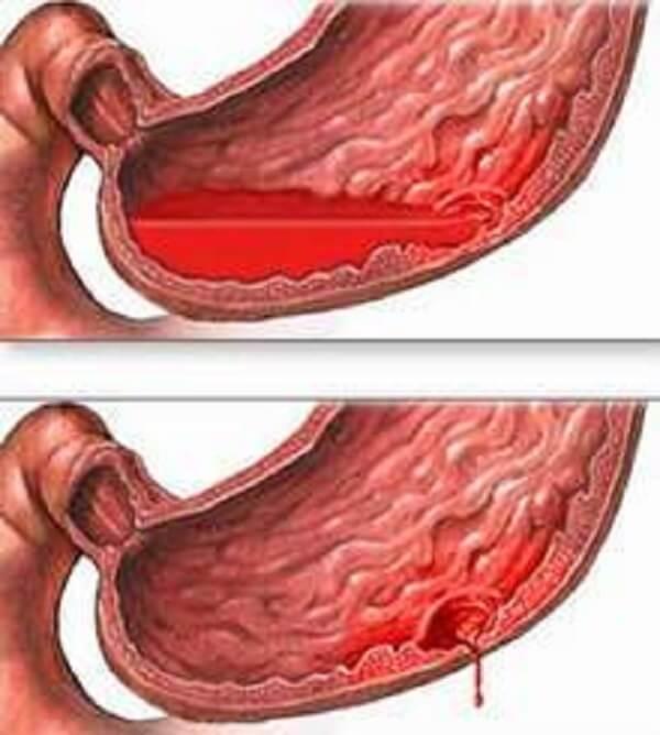 Điều trị xuất huyết dạ dày như thế nào