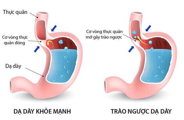 11 triệu chứng mắc bệnh trào ngược dạ dày thực quản phổ biến nhất
