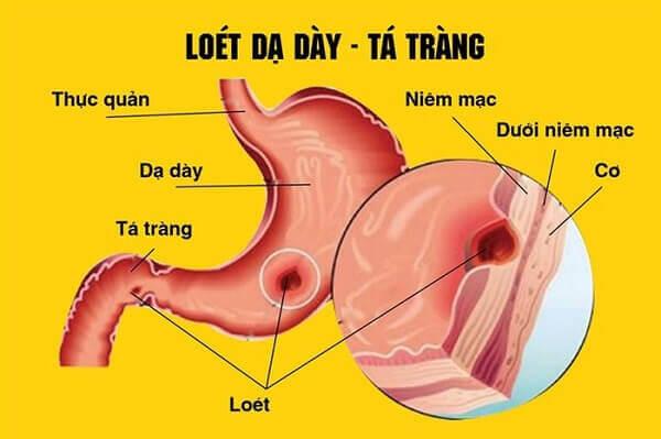 Viêm dạ dày tá tràng là gì, triệu chứng bệnh viêm loét dạ dày tá tràng
