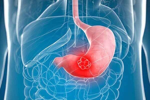 Các phương pháp xét nghiệm ung thư dạ dày do nhiễm vi khuẩn Hp