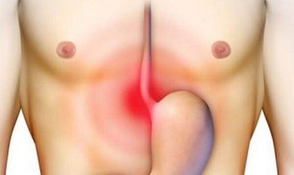 Ung thư dạ dày thường được phát hiện ở những người từ 50 đến 70 tuổi