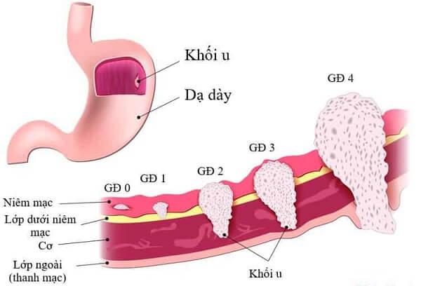 Bệnh ung thư dạ dày có mấy giai đoạn phát triển?