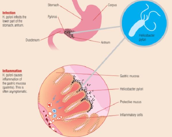Vi khuẩn hp dương tính trong dạ dày có ý nghĩa gì?