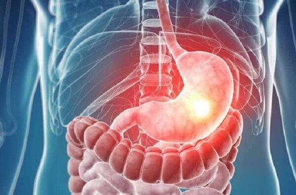 Biểu hiện của nhiễm vi khuẩn Hp dương tính