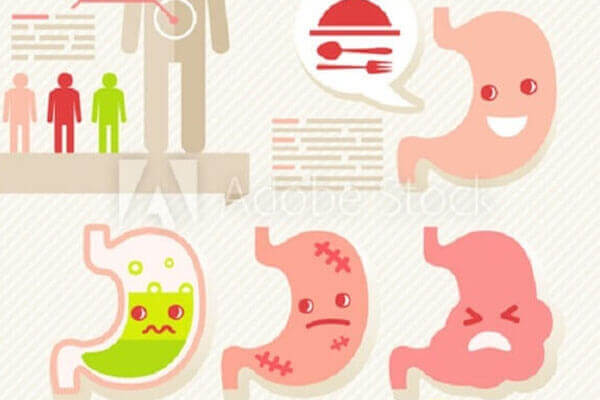 """""""Không phải ai mắc vi khuẩn HP cũng có thể bị ung thư dạ dày"""""""