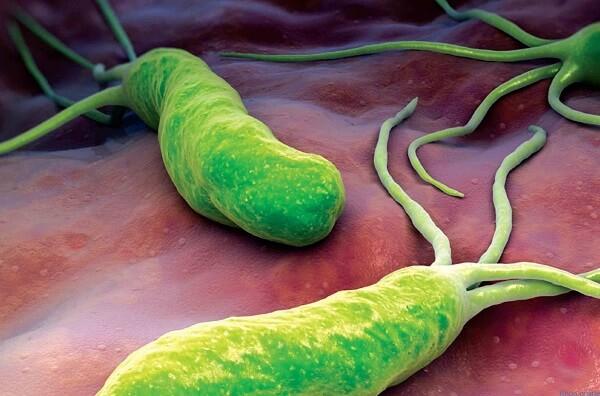 Vi khuẩn Helicobacter Pyori