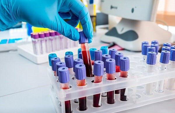 Xác định vi khuẩn HP qua đường máu