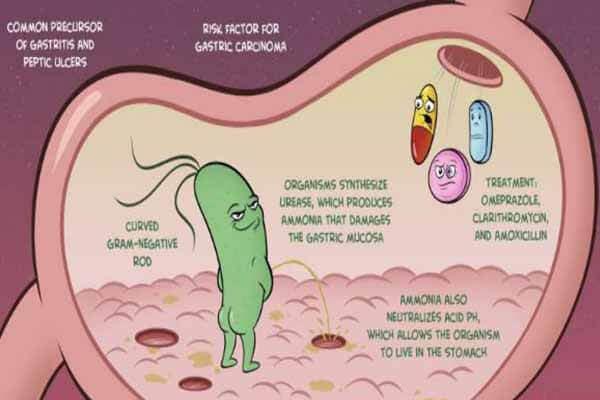 Vi khuẩn Hp (helicobacter pylori) có lây không?
