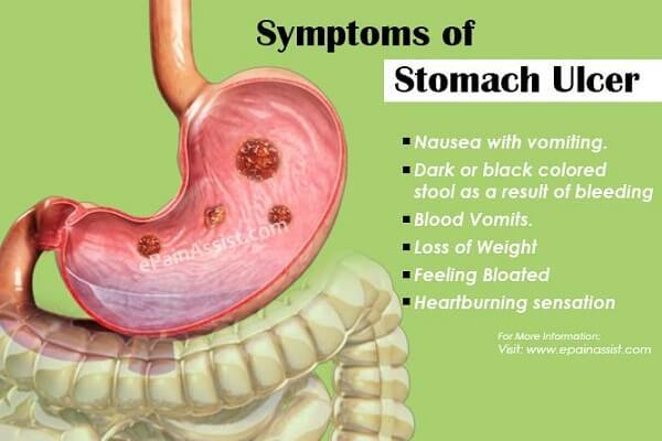 Viêm loét dạ dày tiếng anh là gì: stomach ulcers
