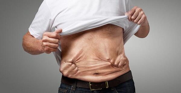 Ung thư dạ dày tiếng anh là gì: stomach cancer hoặc gastric cancer