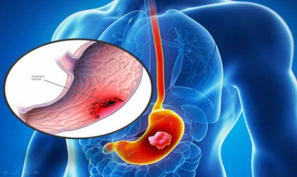 Viêm hang vị dạ dày nên uống thuốc gì để điều trị dứt điểm?