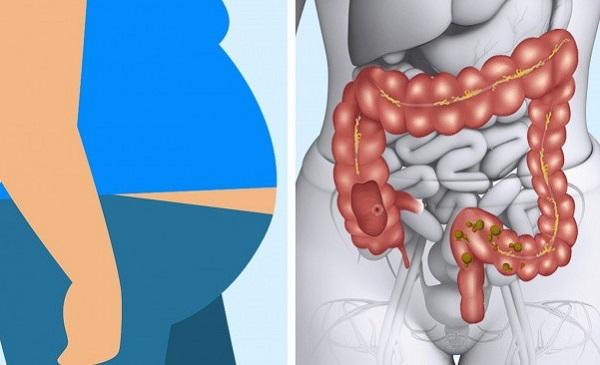 Chuẩn đoán triệu chứng viêm loét dạ dày tá tràng bằng cách nào hiện nay