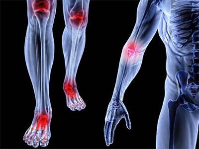 Danh sách các bác sĩ giỏi về cơ xương khớp, đau nhức lưng, vai, các chi và chấn thương thể thao tại Tphcm
