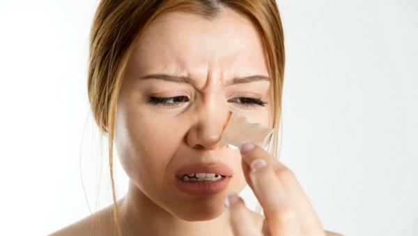Mẹo trị mụn đầu đen tại nhà đơn giản và hiệu quả nhất