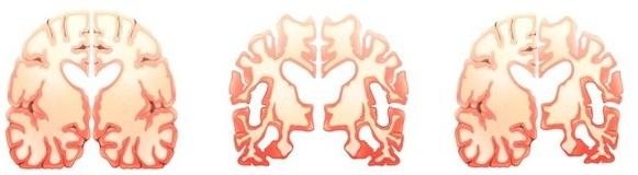Vitamin E có phòng được mất trí nhớ không? 1
