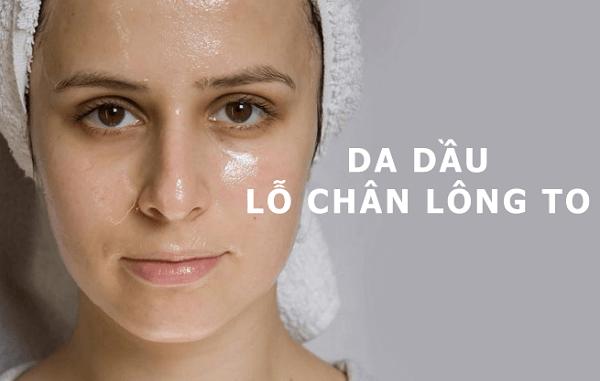 3 cách trị mụn cho da dầu không cần sữa rửa mặt ngay tại nhà