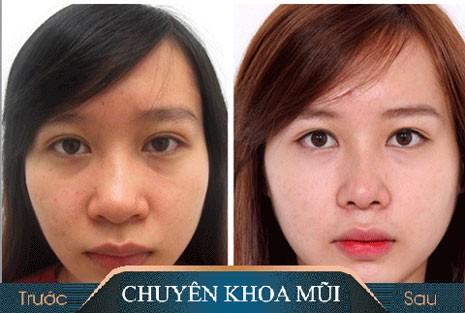 Giải đáp thắc mắc về phẫu thuật thu gọn cánh mũi