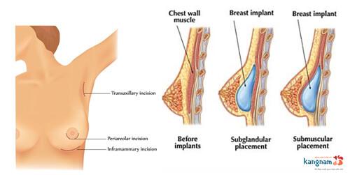 Nâng ngực có được vĩnh viễn không? Tư vấn của bác sĩ chuyên khoa ngực 2