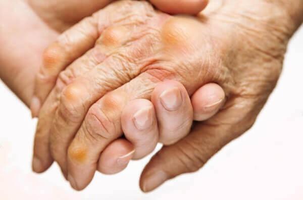 Bệnh Gout (hay còn gọi là bệnh Gút) trong Đông y gọi là bệnh thống phong là một dạng viêm khớp do sự rối loạn chuyển hóa axit uric trong cơ thể gây ra.