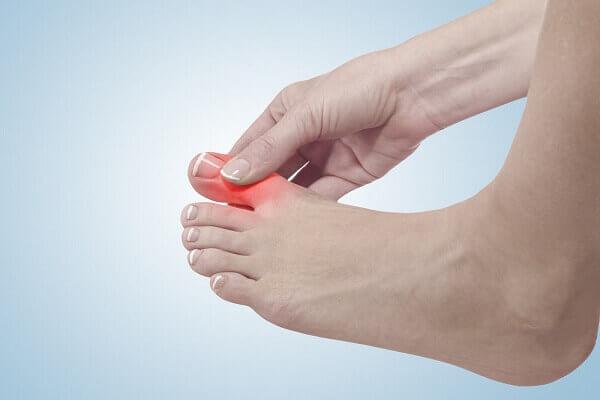 Bệnh Gout là gì, có chữa được không? Bệnh Gút kiêng ăn gì? Cách hỗ trợ điều trị bệnh Gout đơn giản hiệu quả
