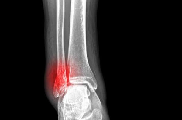 Lập kế hoạch chăm sóc bệnh nhân gãy xương đầy đủ, chi tiết nhất
