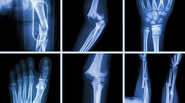 Các bước để lập kế hoạch chăm sóc bệnh nhân gãy xương tốt và đầy đủ
