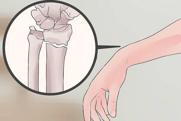 Cách lập kế hoạch chăm sóc bệnh nhân gãy xương đòn sau phẫu thuật