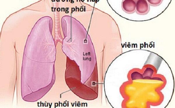 Những kỹ thuật y tế nào dùng để chẩn đoán bệnh viêm phổi?