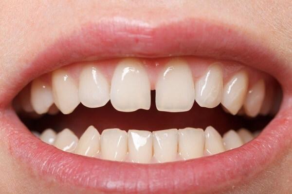 Răng thưa là loại răng hở kẽ, đây là một trong những kiểu răng phổ biến.