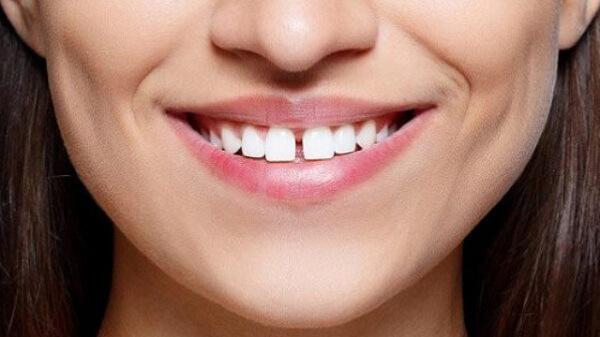 """""""Răng thưa nói láo"""" là ám chỉ những phẩm chất không tốt, tiêu cực."""