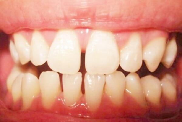 Những người có răng thưa hàm dưới và hàm trên là những người có tính tình vô tư, phóng khoáng và cởi mở.